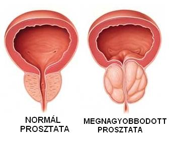 gyógyszerek a prosztata adenoma kezelésére